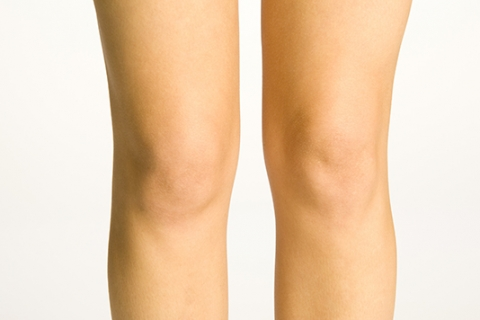 Image of knees liposculpture in Sydney by Besculptured.com.au