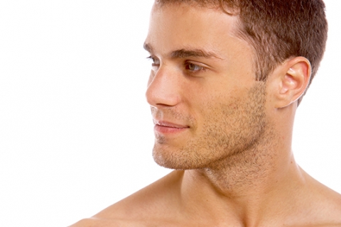 Image of men chin and neck liposculpture after by Besculptured.com.au