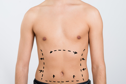 a surgeon planning  Liposculpture for Men