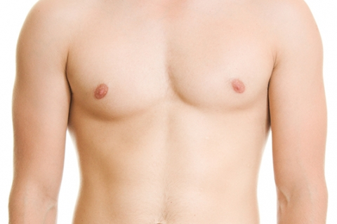 Image of men breast reduction in Sydney by Besculptured.com.au