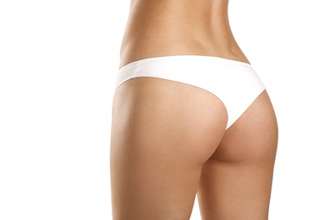 Image of women outer thigh and buttocks liposculpture by Besculptured.com.au