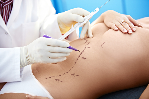a patient being prepped for Tummy Liposuction in Sydney