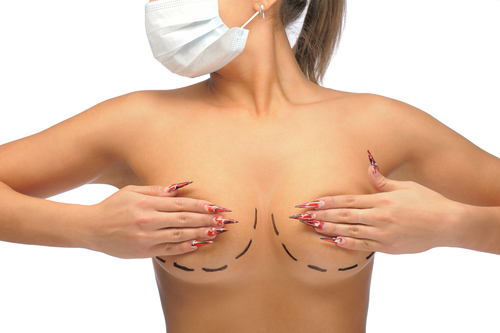 a woman being prepared for Reduction Mammoplasty in Sydney