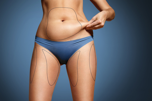 a woman looking to get started with liposculpture  Body Sculpting Procedures in Sydney