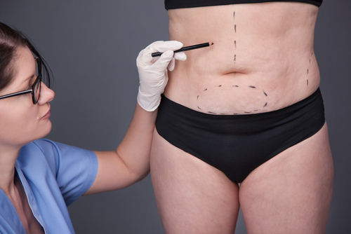 Image of female liposuction surgeon by Besculptured.com.au