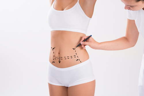 Image of lipoplasty in Sydney by Besculptured.com.au