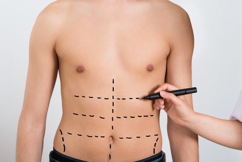 Image of abdomen liposculpture in Sydney by Besculptured.com.au