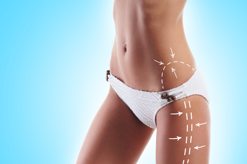 Image of hips liposculpture in Sydney by Besculptured.com.au
