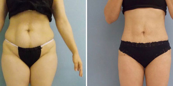 Liposculpture Stomach - Be Sculptured Sydney