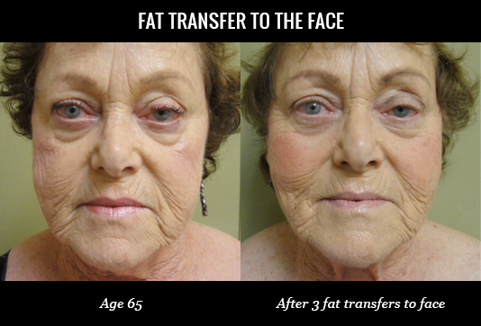 Fat Transfer to Face