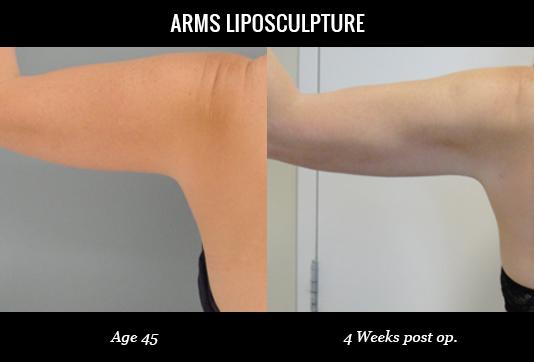 Women-Arms4