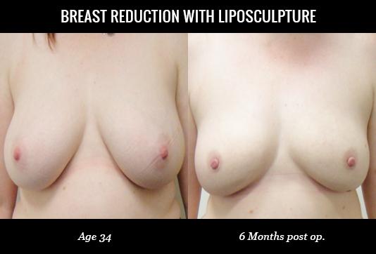 Women-Breast4